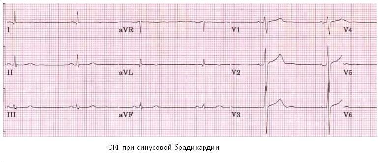 Bradycardia2