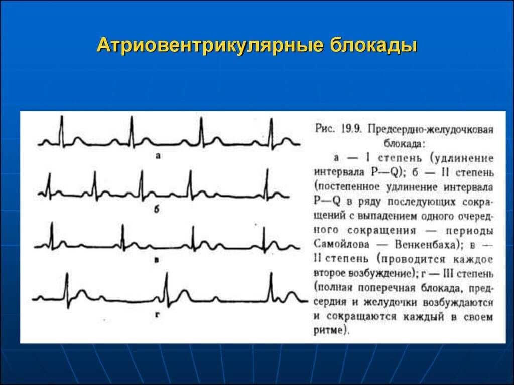 What is bradycardia, how is it dangerous, and how to treat it. Sinus bradycardia - what is it? 24