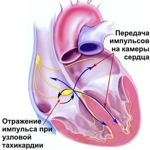 Podzhelud_aritm1