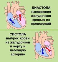 Sistolich_aritm1