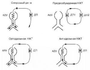 antidromnaya2