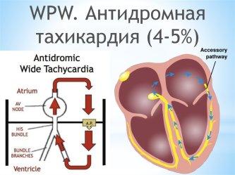 Antidrom-tah