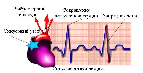 Признаки аритмии сердца у мужчин