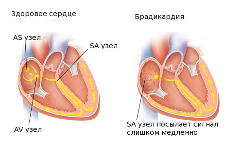 cross-section heart with electrical pathways pickup from 4B11468/ MOD: simplified heart; add electrical system