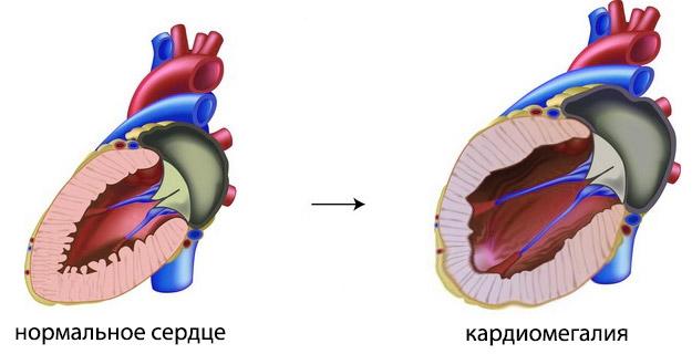 Почему увеличивается сердце у человека и как его лечить?