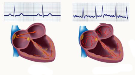 Difference in arrhythmia
