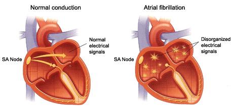 atrial fibrillation-1