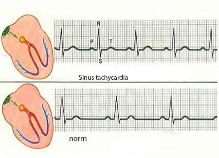 sinusovaya-tahikardiya-i-norma