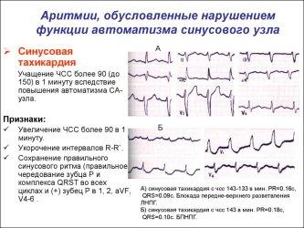 Nevrolog_aritm3