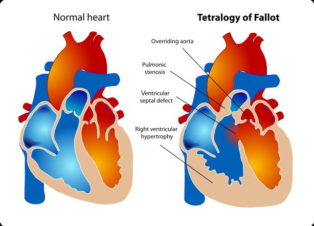 pulmonary arrhythmia
