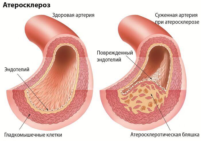 ateroskleroz_razvitie_bolezni_1