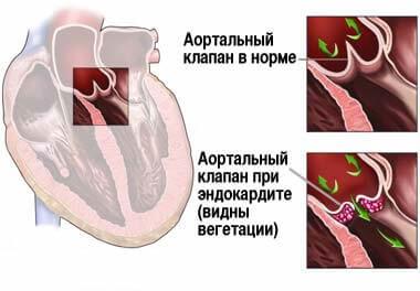 4_endokardit