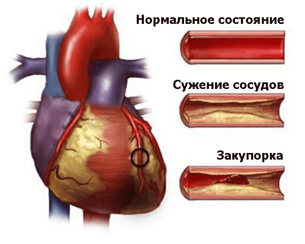 Атеросклеротическая