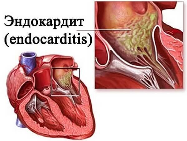 Endocarditis-5