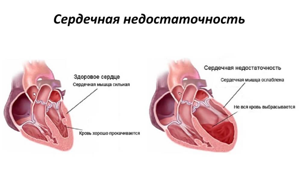 Сердечная-недостаточность