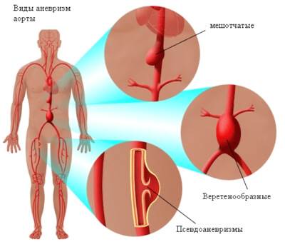 anevrizma-aorty-1