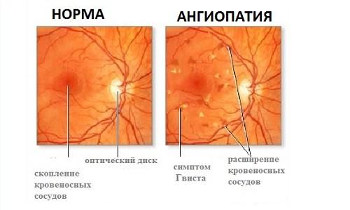 angiopatia