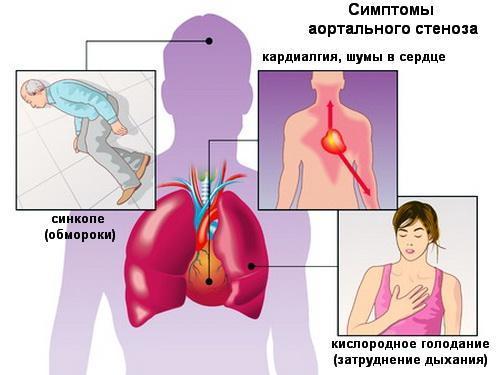 aortalnyj-stenoz-1
