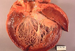 cardiomyopathy,_gross