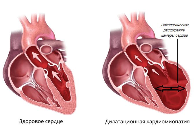dilatacionnaya-kardiomiopatiya