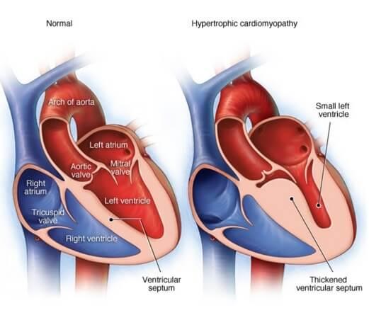 hipertrophia-miokarda-1