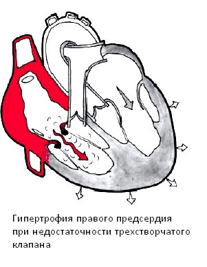 hipertrophia-miokarda-4