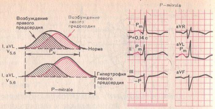 hipertrophia-miokarda-5