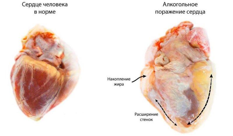 kardiomiopatija-alkogolnaja