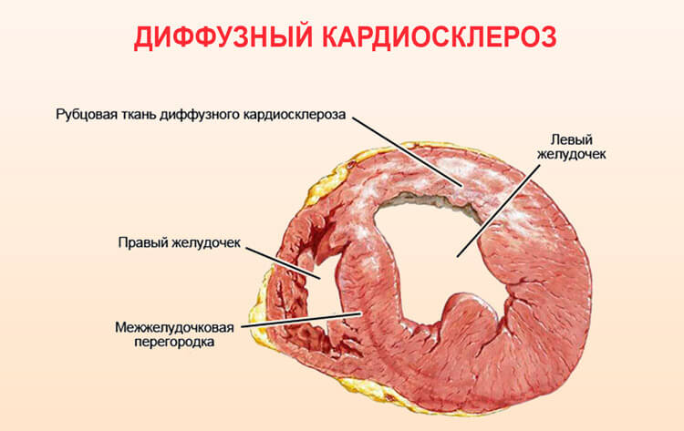 kardioskleroz