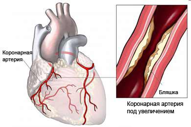 ostr-koronar-sindr-1