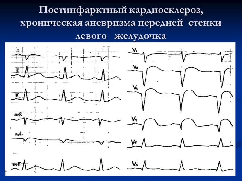 postinfarknij_kardioskleroz_301
