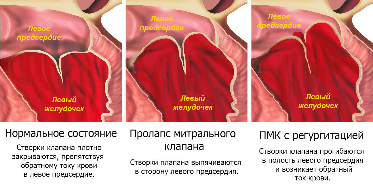 prolaps-mitralnogo-klapana