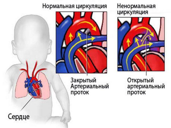 protok-otkrytyj-arterialnyj