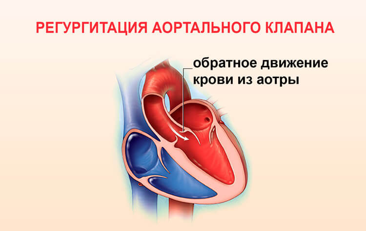 regurgitaciya-aortalnogo