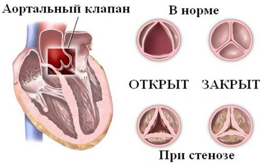 stenoz_ysty_simptomu
