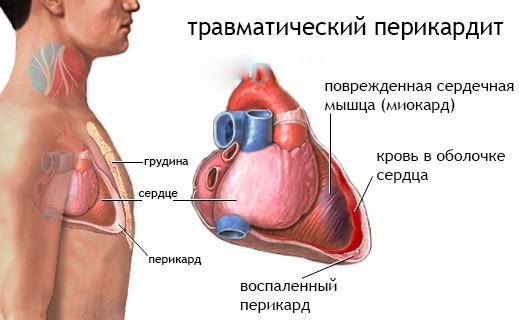 travmaticheskiy-perikardit