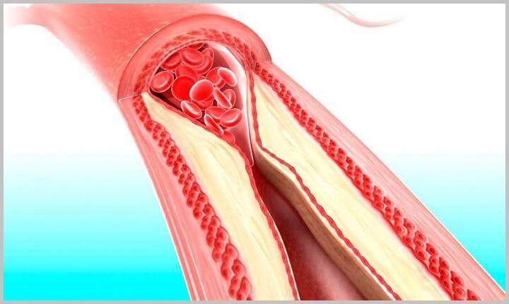 Priz-spinal-ishem-stroke