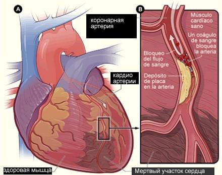 postinfarktnyy-kardioskleroz