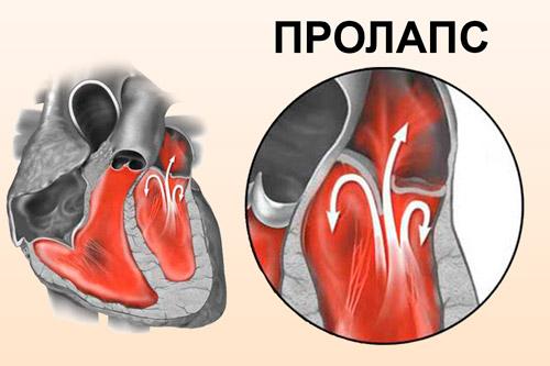 prolaps-mitralnogo