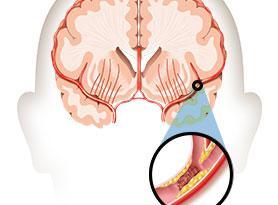 stroke-3