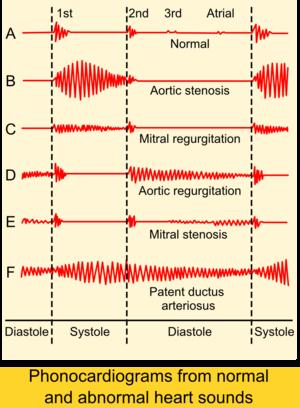 Phonocardiograms