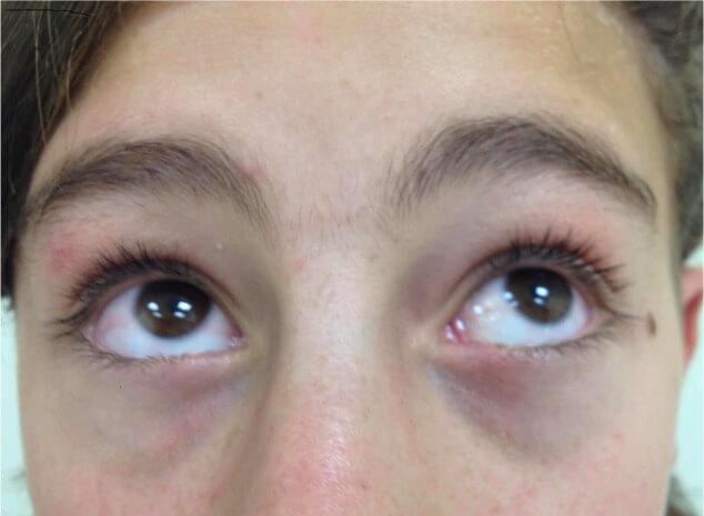 oculogyric-crisis