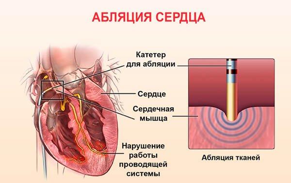 ablyatsiya