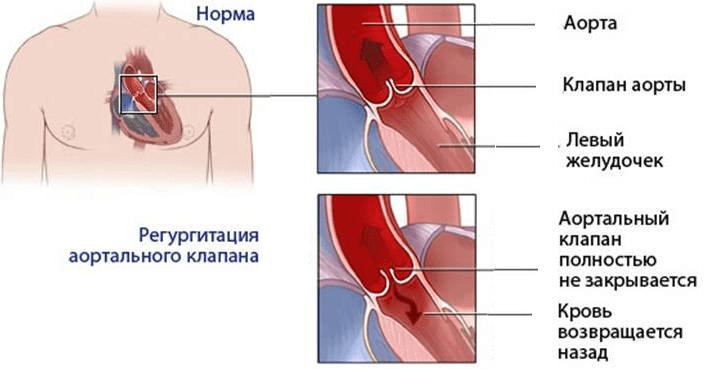 aortalnaya-nedostatochnost