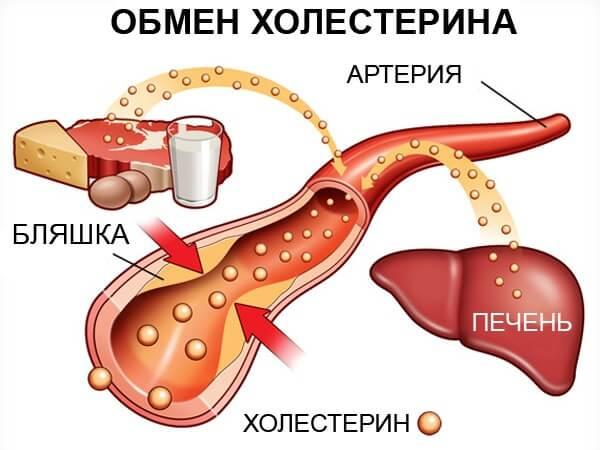 Атеросклероз при нормальном уровне холестерина: может ли такое быть?