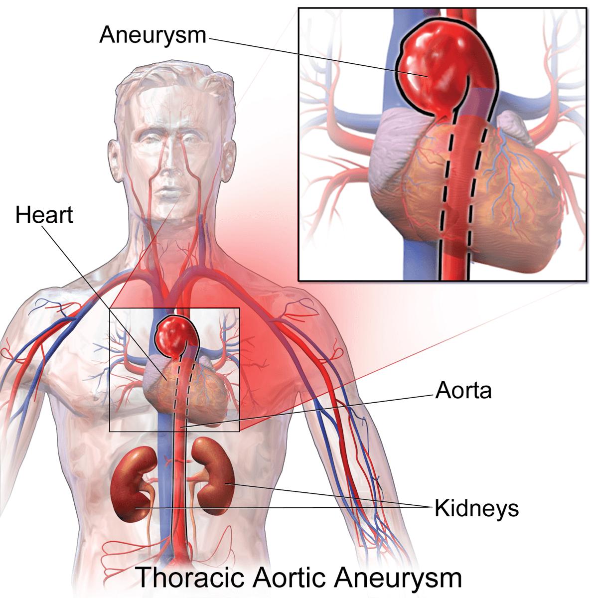 I71.1 Аневризма грудной части аорты разорванная